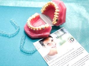 Aligner orthodontics at iDental